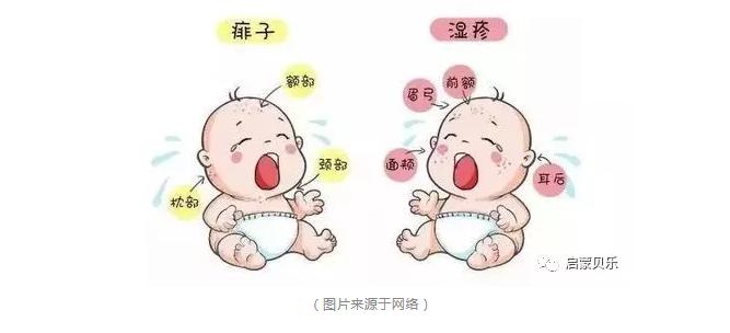 """【启蒙贝乐分享】秋季湿疹大作战,让宝宝远离""""多事之秋"""""""